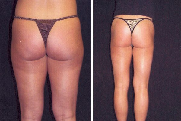 liposuction 1 before-after
