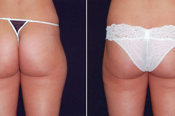 liposuction 2 before-after