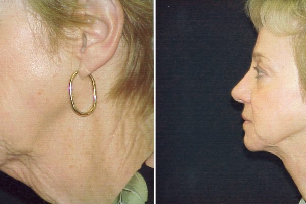 neck lift 1 before-after