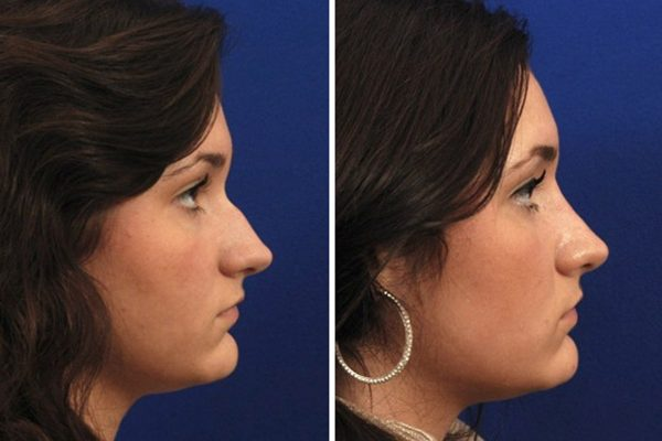 Rhinoplasty Before and After Pictures.