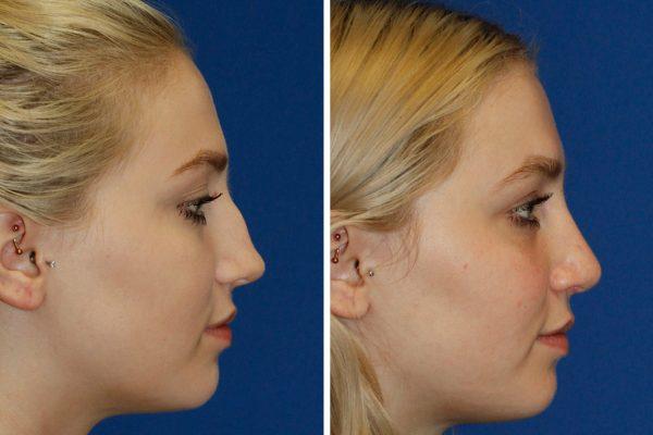 rhinoplasty santa barbara 3