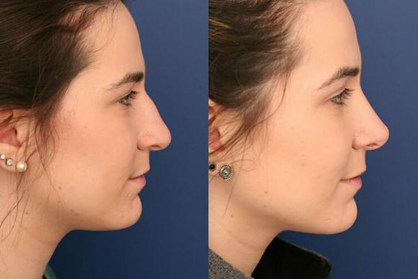 rhinoplasty santa barbara